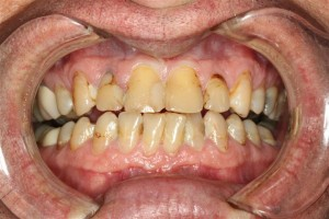 Cosmetic Dentist Pasdena Texas