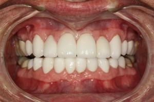 Best Dentist Pasdena Texas