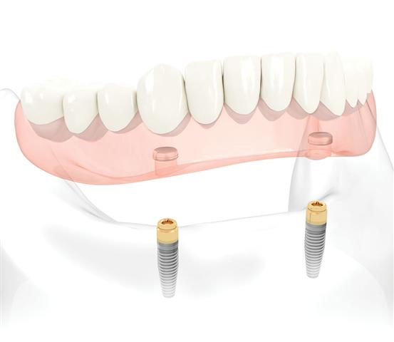 Implant Denture Pasadena