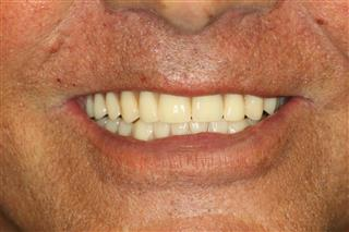 Deer Park Texas Dental Implant Dentures