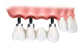 Dental Implant Bridge Pasadena Texas