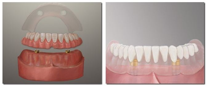 Pasadena Dental Implant Dentures