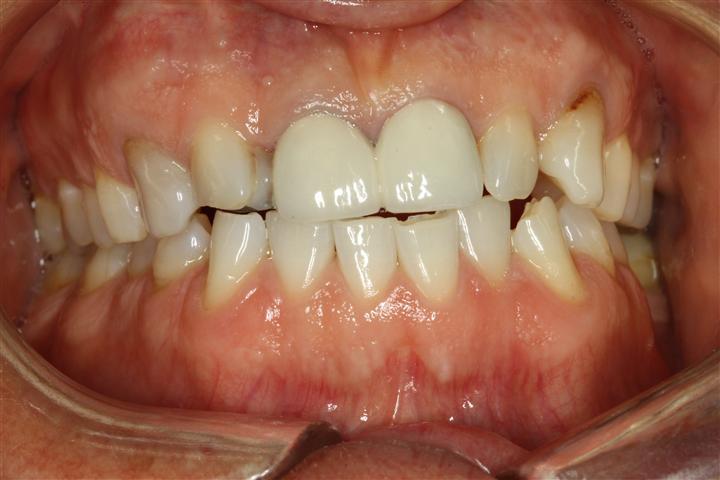 Pasadena Texas Cosmetic Dentist