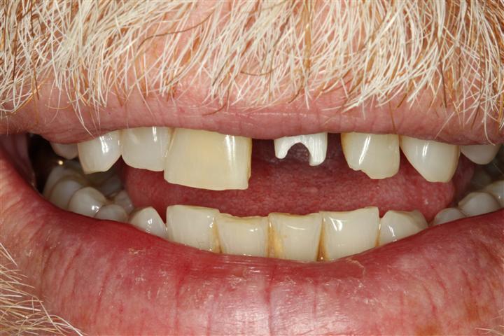 Deer Park Dentist Dental Implant