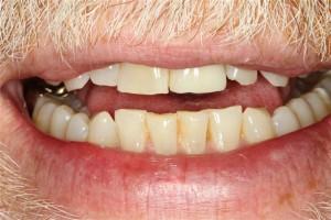 Best Deer Park TX Dentist