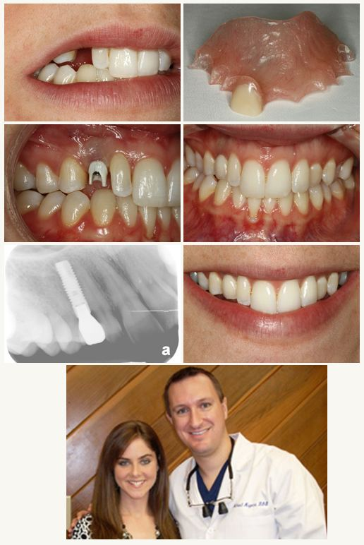 Deer Park Texas Dental Implant