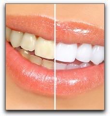 Teeth Bleaching Pasadena Texas