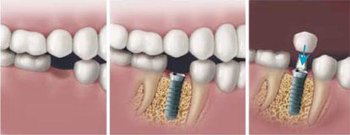 Pasadena Implant Dentist