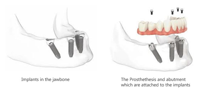 All on Four Dental Implants