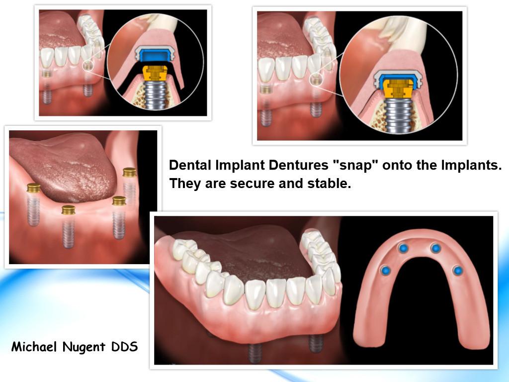 Dental Implant Dentures Pasadena Texas