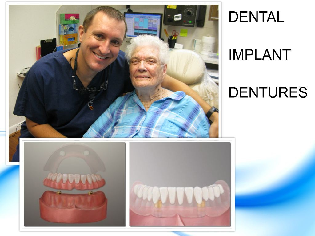 Implant Dentures Pasadena Texas