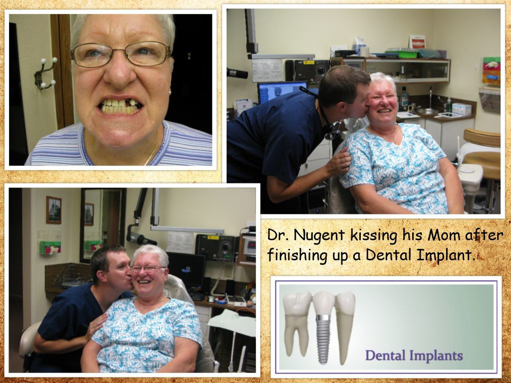 Dental Implants 77504