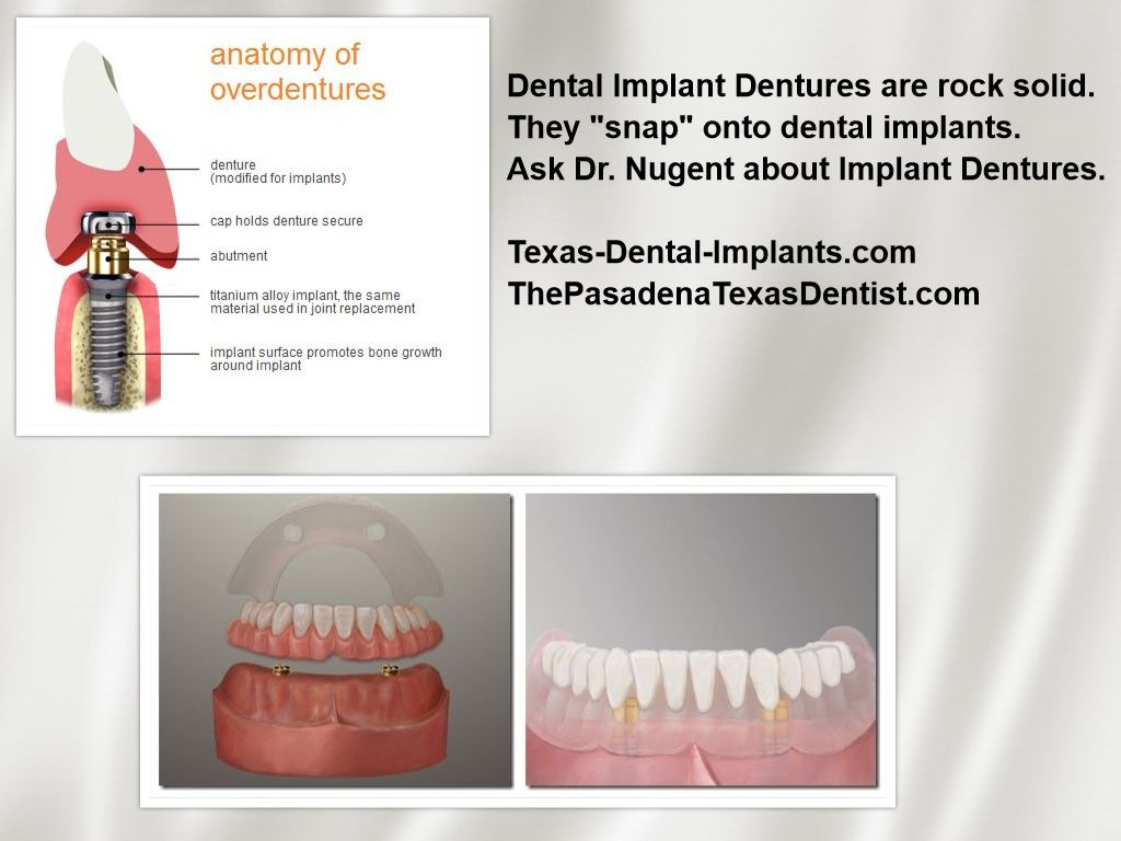 Dental Implant Denture Pasadena Texas