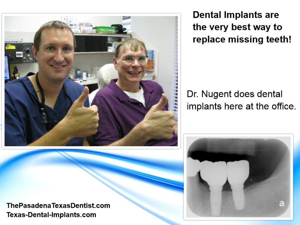 Dental Implants for Deer Park Texas