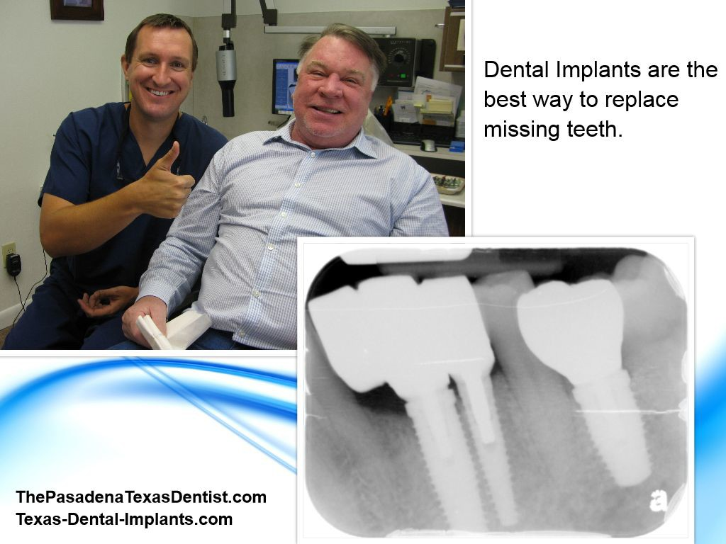 Dental Implants for Pasadena Texas