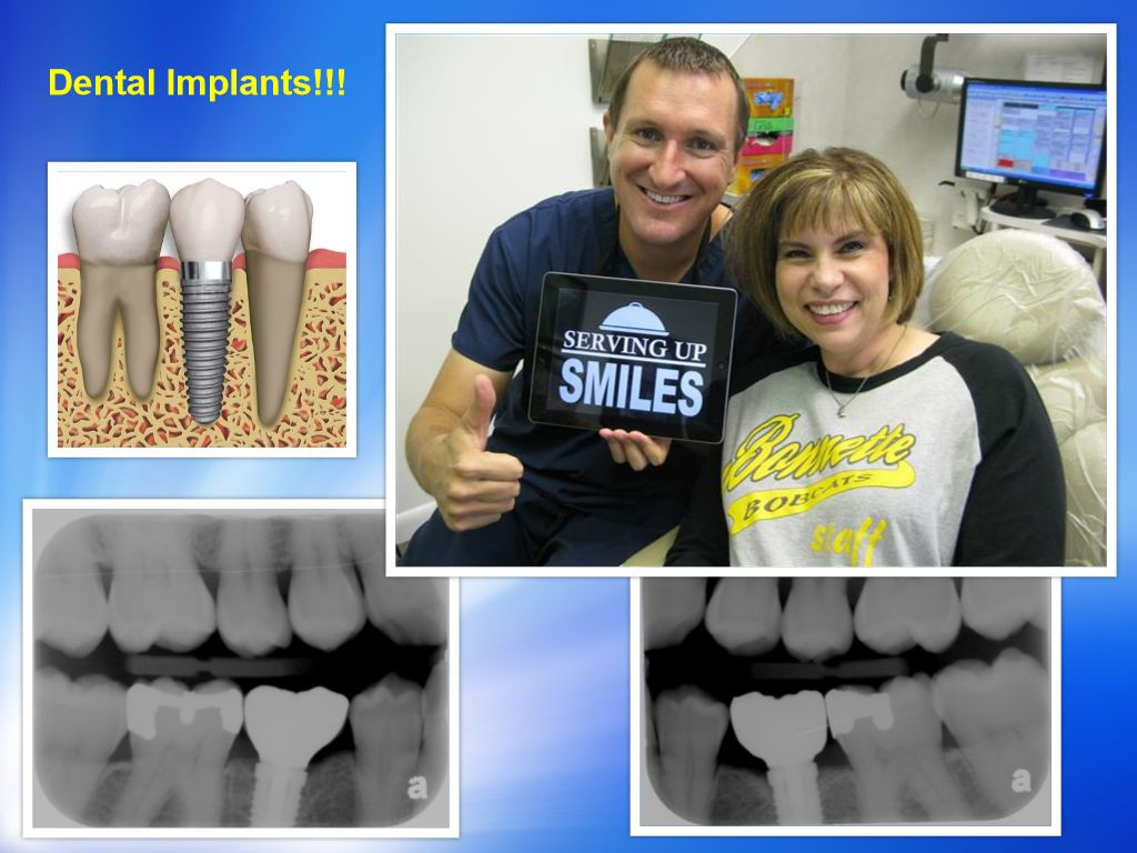 Pasadena Texas Dental Implant Dentist
