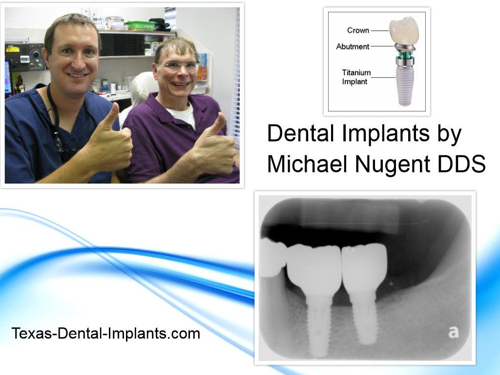 Dental Implants Pasadena Texas