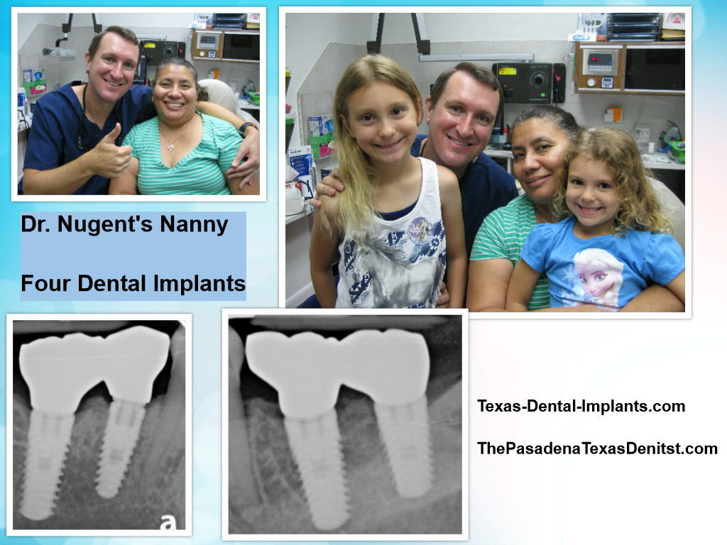 Deer Park TX Dental Implants
