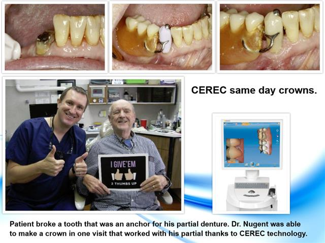 CEREC Crown Pasadena Texas