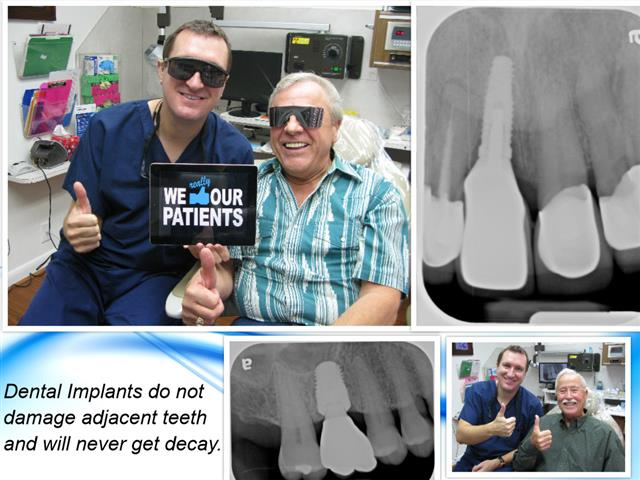 Pasadena Texas Dental Implant Dentistry