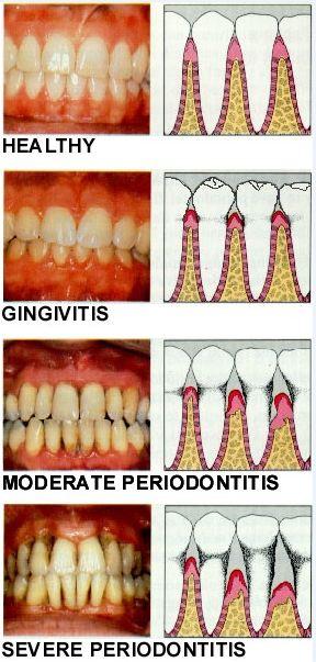 Gum Disease Pasadena Texas