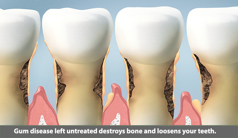 bone-loss-pasadena-texas